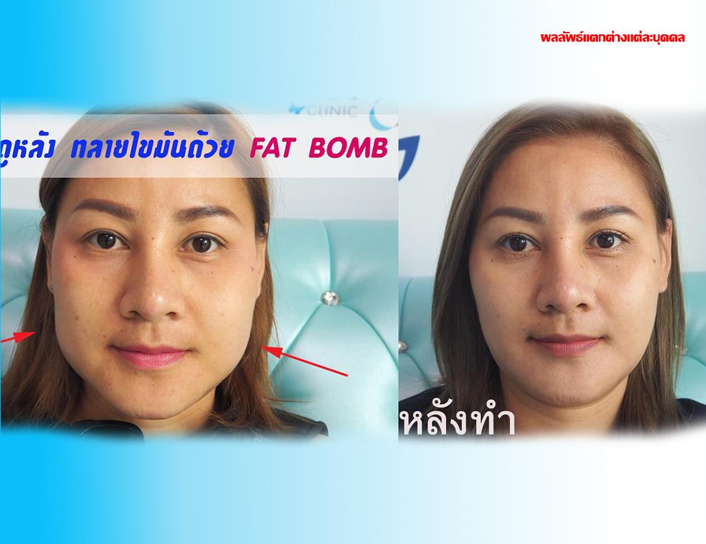Fat Bomb K.