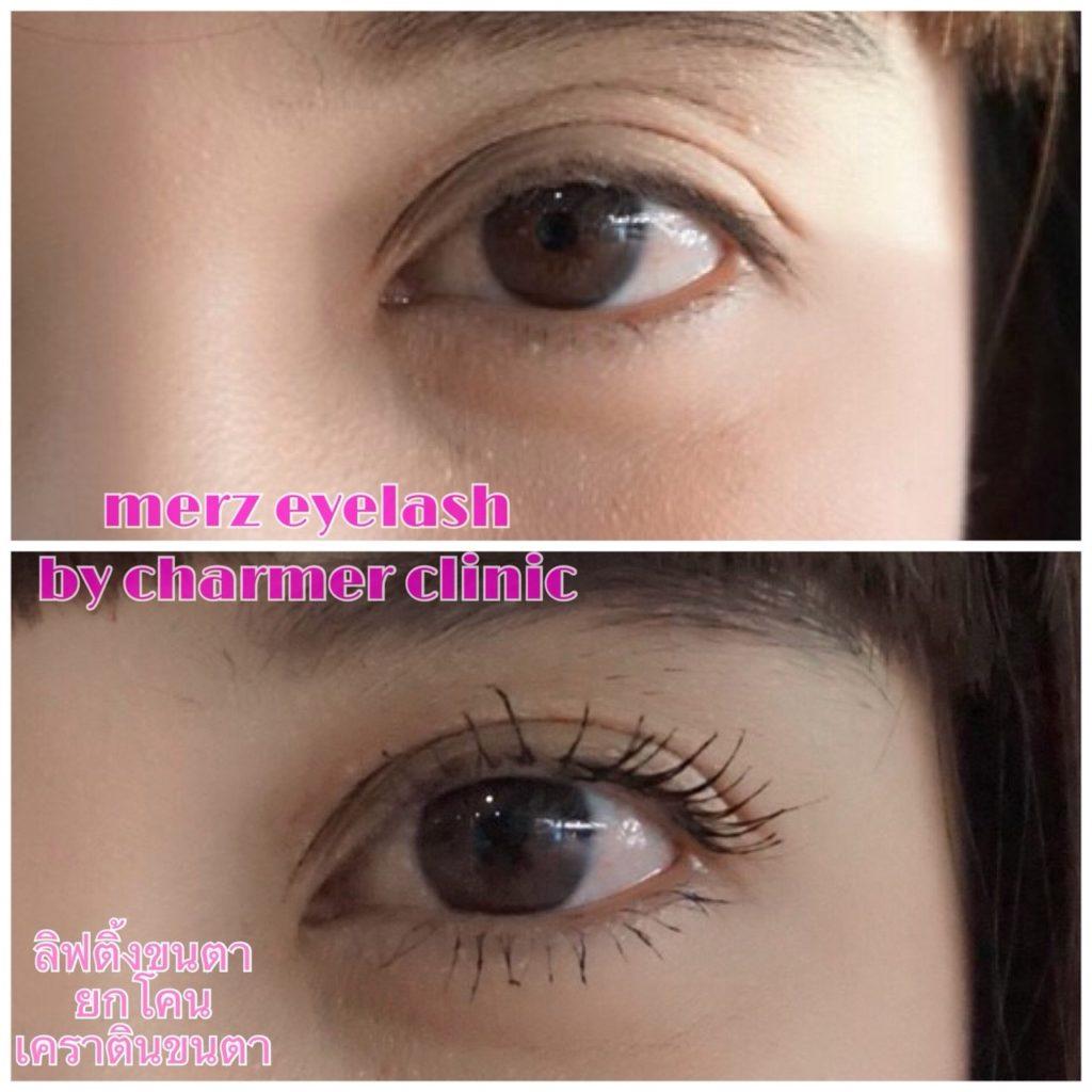 ดัดขาตาถาวร ขนตาปลอม ลิฟติ้งขนตา liftingขนตา ยกโคนขนตา บำรุงขนตา เคราตินขนตา merzeyelash eyelash charmerclinic