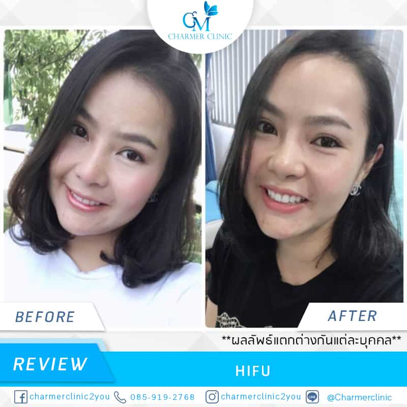 CHARMER CLINIC review HIFU