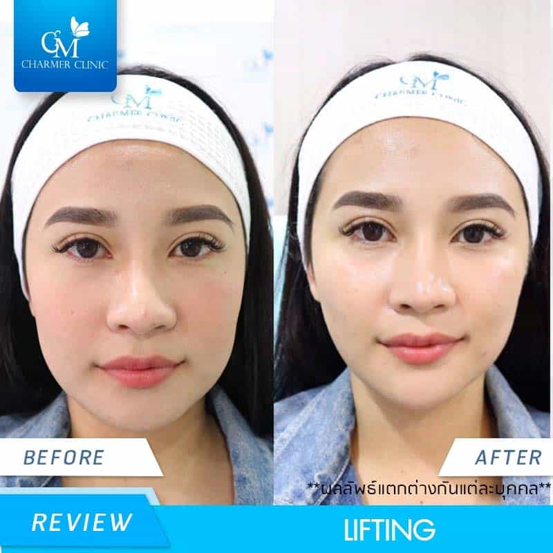 CHARMER CLINIC review LIFTING ขนตางอน