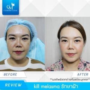 รีวิว Kill Melasma รักษาฝ้า by charmer clinic