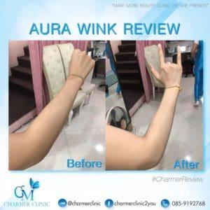 รีวิวฉีดผิว aura wink by charmer clinic