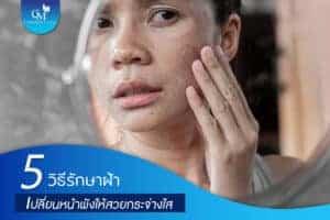 5วิธีรักษาฝ้า by charmer clinic