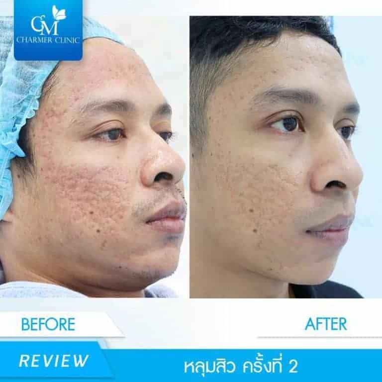 รีวิว Derma Reju by charmer clinic