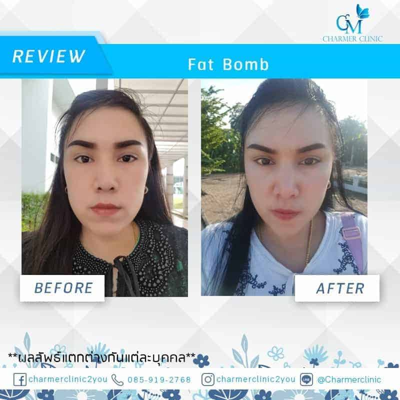 รีวิว Fat Bomb by charmer clinic