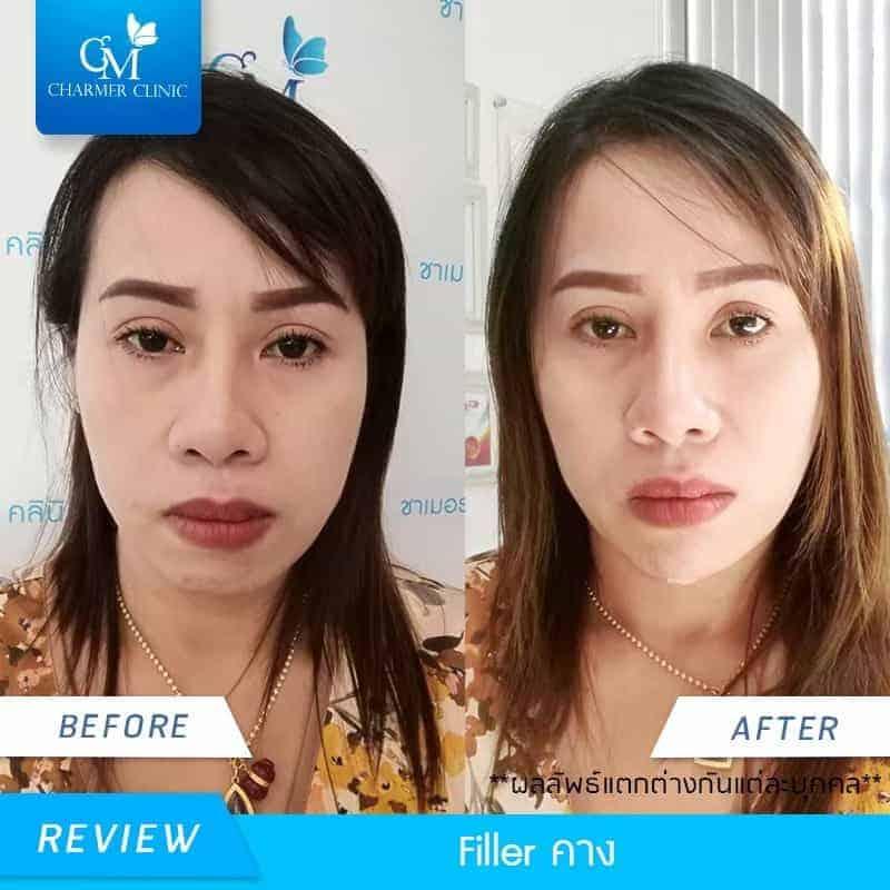 รีวิว ฟิลเลอร์คาง by charmer clinic