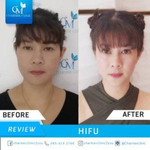 รีวิวการทำ ไฮฟู ( HIFU ) by Charmer Clinic