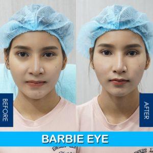 รีวิวฉีดลดใต้ตาดำด้วย barbie eye by charmer clinic