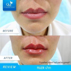 รีวิว filler ปาก by charmer clinic