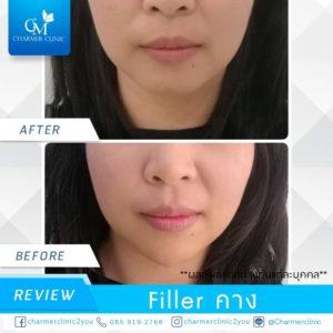 รีวิว filler คาง by charmer clinic